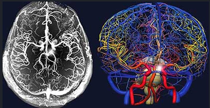 МРТ с контрастом и 3D-визуализацией